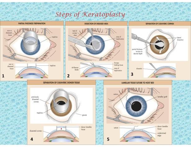 Keratoplasty-001-001